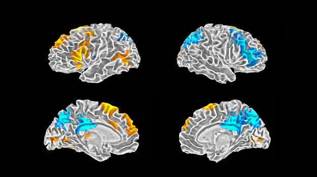 Image of a brain scan taken during the rap study. The orange colors show the parts of the brain that are active when a rapper is improvising. The blue areas show activity when the rapper is performing a rap from memory.