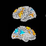Rap Brain