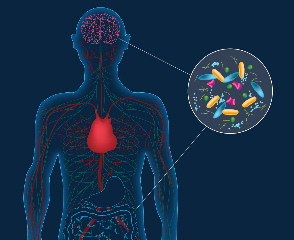 Artist's concept depicting microbes in the gut instigating changes in the brain that can lead to Parkinson's disease. People with Parkinson's harbor distinct gut bacteria that influence the disease's severity.