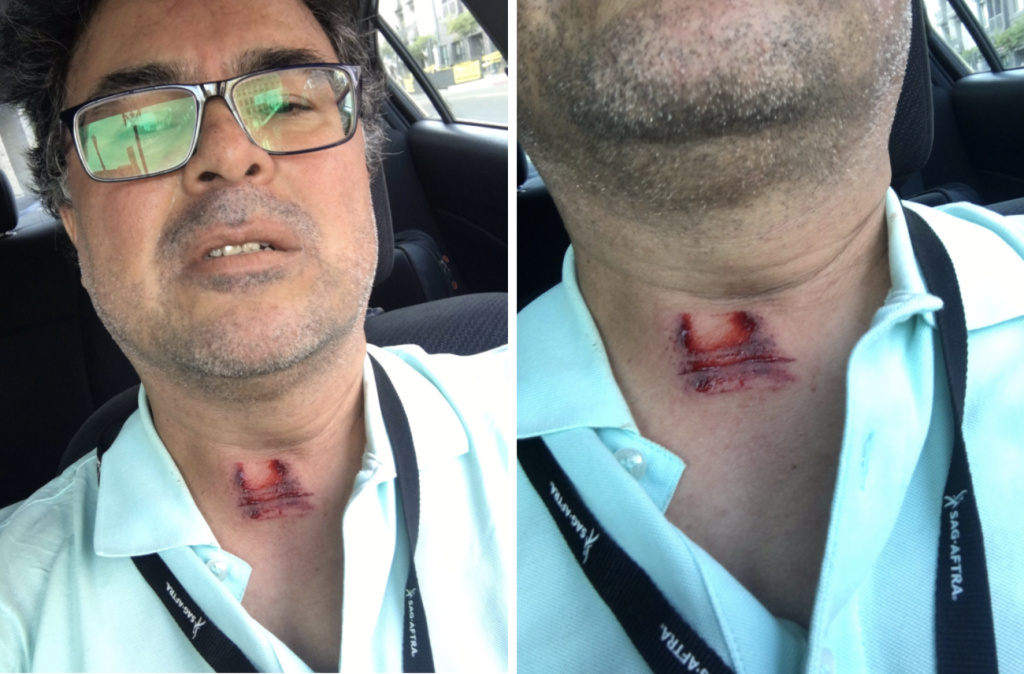 Minutes after he was struck in the neck while covering a protest in Long Beach, our higher education reporter Adolfo Guzman-Lopez reported his own injury on social media.