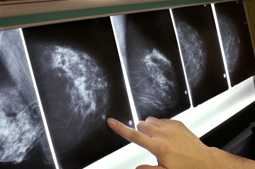Breasts deemed