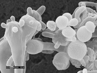 An image of the new Cryptococcus gattii fungus strain, magnified. Taken from the Center for Disease Control website on July 22, 2010.