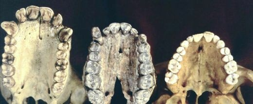 As we began to shy away from eating primarily fruit, leaves and nuts and began eating meat, our brains grew. We developed the capacity to use tools, so our need for large, sharp teeth and big grinders waned. From left, a cast of teeth from a chimpanzee, Australopithecus afarensis and a modern human.