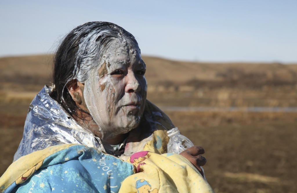 Activists and police trade blame after Dakota Access protester severely injured