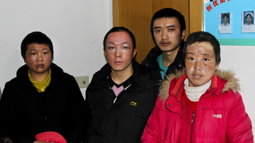 Workers burned during an explosion at an Apple supplier factory in Shanghai are seen at a hospital where they are receiving continued treatment for their injuries.