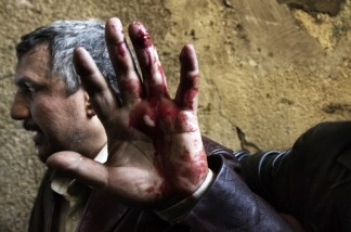 An Egyptian anti-regime protester, wounded during clashes with government supporters, gestures as he is taken into a makeshift clinic at the Ibad al-Rahman mosque near the flashpoint Tahrir square in Cairo on Feb. 2, 2011.