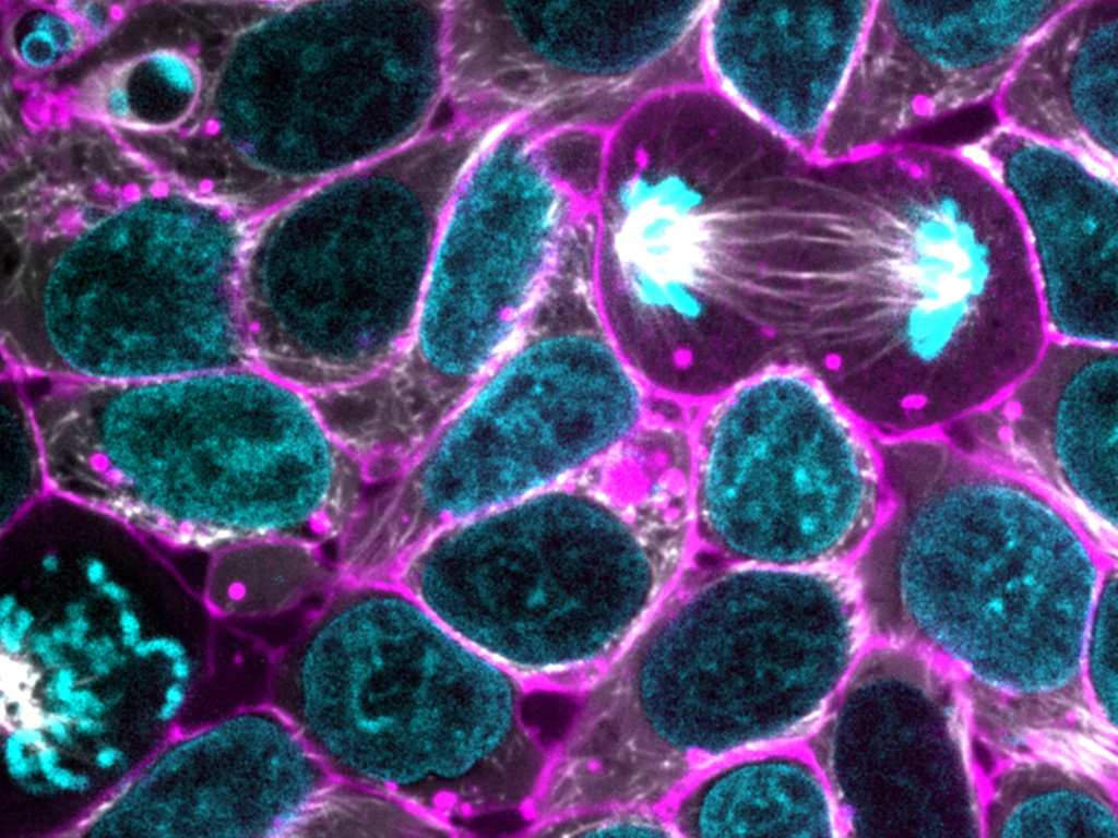 Glowing human cells may shed light on sickness and health