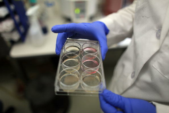 A scientist holds a tray of stem cells.