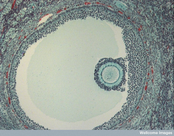 Human egg in a follicle.