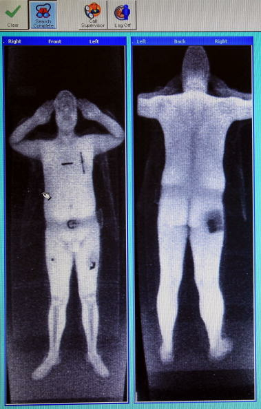 The scanner x-rays to the depth of 10mm to produce an outline of the person's body which is then used to detect concealed, potentially dangerous objects.