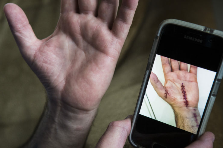 Mark Eberley, 48, shows his scar from his hand surgery after carpel tunnel syndrome left him unable to continue work at the Tesla factory in Fremont, California. Eberley says his longest stretch of working 12-hour shifts was 29 days straight.
