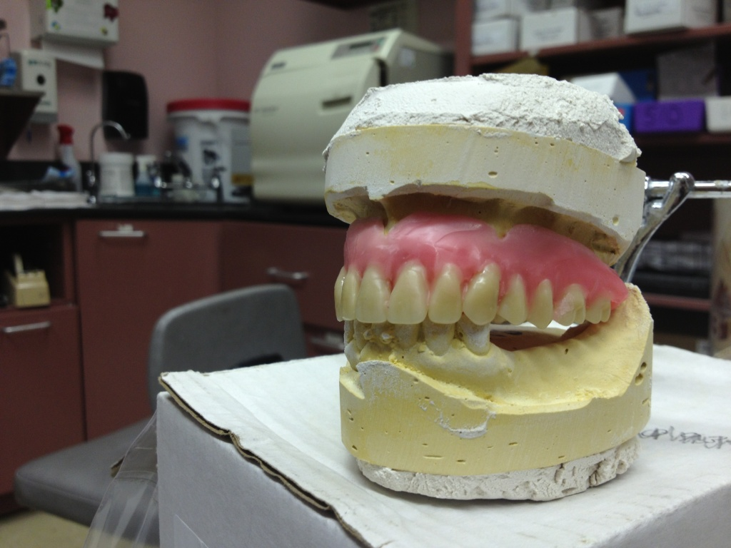 A set of dentures sits in a lab at Watts Health Clinic. Dr. Frazier Moore, the clinic's dental director, said tooth decay is the oral health problem he encounters most, and that by the time patients get to him, the only option left is extraction.