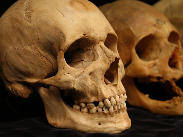 Researchers say it's not just loose skin that makes us look old; it's our bones. These skulls from the Smithsonian Museum of Natural History show the loss of definition in the lower face.