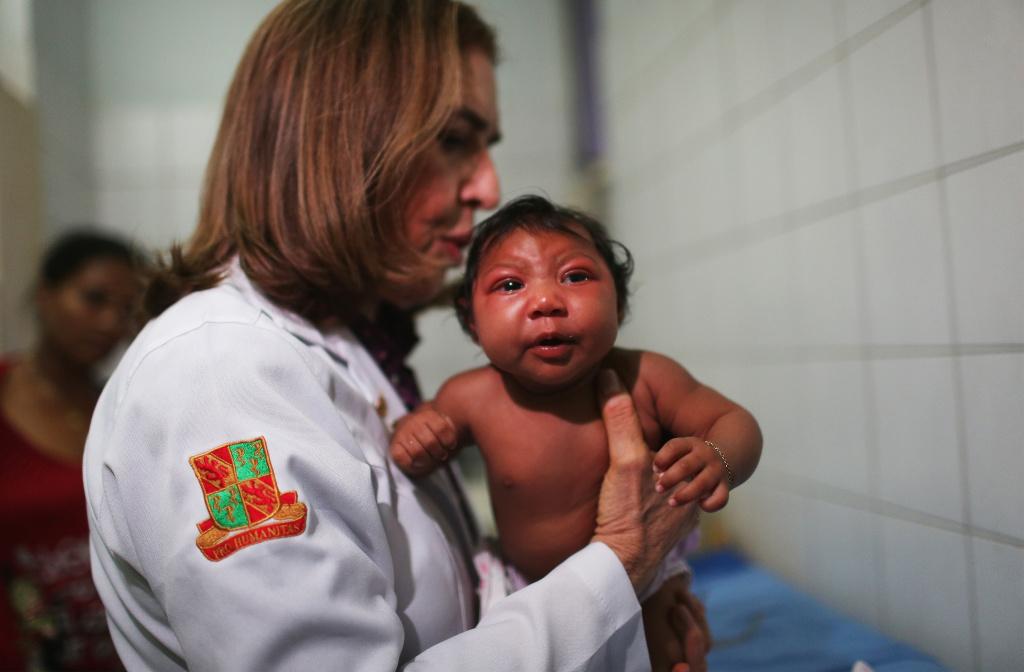 Dr. Angela Rocha (C), pediatric infectologist at Oswaldo Cruz Hospital, examines Ludmilla Hadassa Dias de Vasconcelos (2 months), who has microcephaly, on January 26, 2016 in Recife, Brazil.