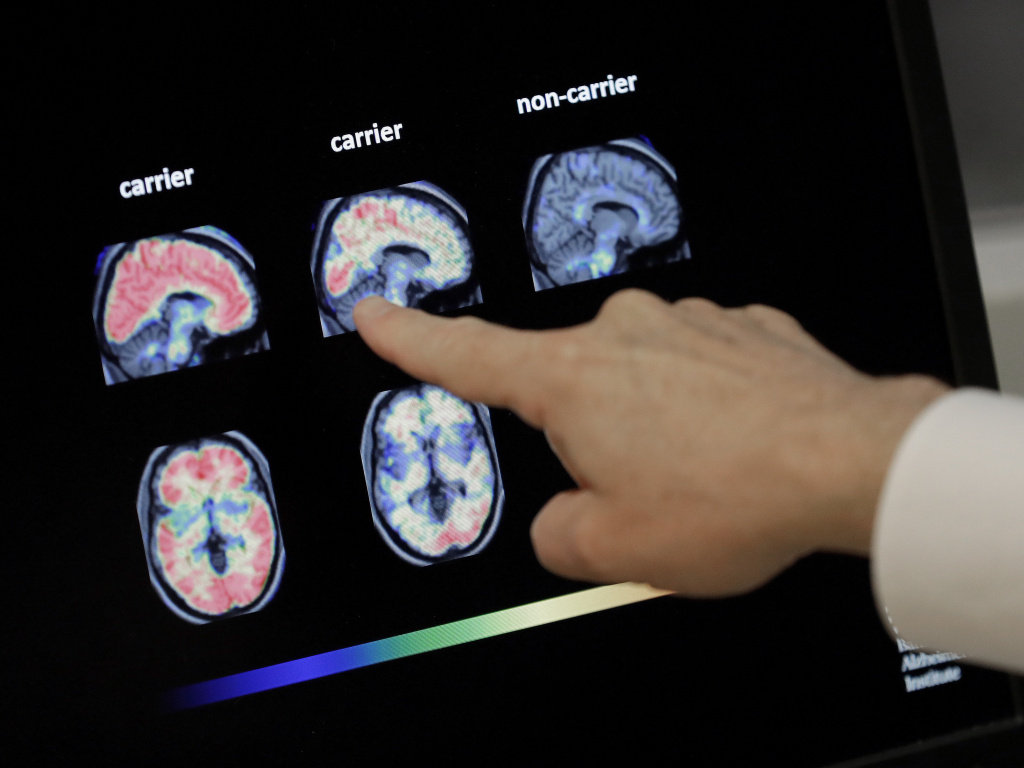 Dr. William Burke reviews a PET brain scan at Banner Alzheimer's Institute in Phoenix in 2018. An experimental Alzheimer's drug from Biogen and Eisai is on the verge of a Food and Drug Administration decision.