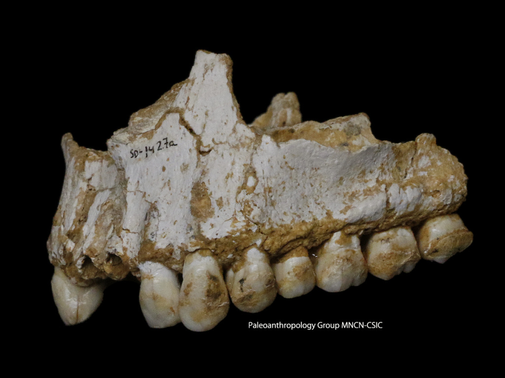 A dental calculus deposit is visible on the rear molar (right). The teeth belong to the sick boy in the Spanish cave. He was eating poplar, a source of aspirin, and vegetation with mold, including the fungus Penicillium, which is the source of the antibiotic penicillin.
