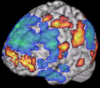 Areas of activation (red) and deactivation (blue) in the brain of someone improvising jazz, from a 2008 study by Charles Limb. [Caption modified from original for clarity.]