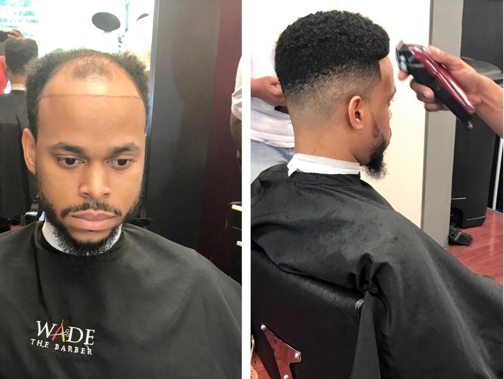 Mens Hair Piece Styles: 'Man Weaves' Offer Cover For Balding Men, Cash For Black