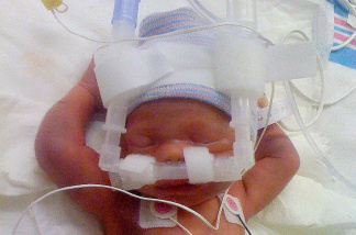 A premature baby born 2 1/2 months early on machines in the NICU.