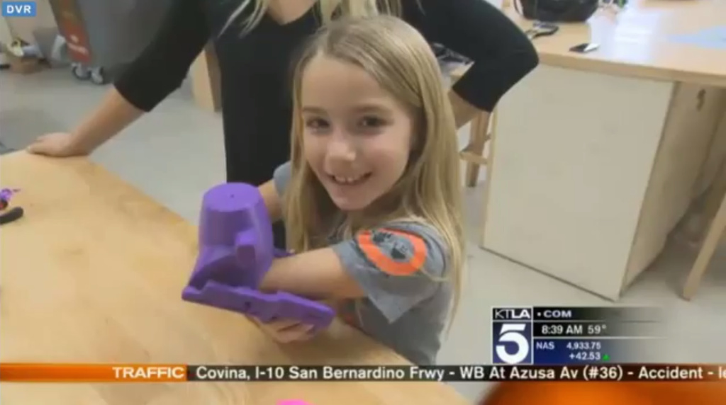 Video: 3D print technology providing 'robohand' to 7-year ...