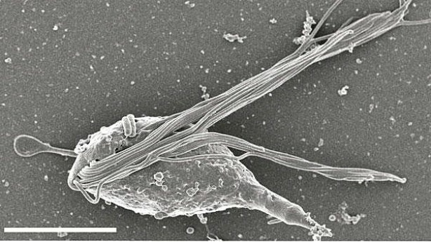An image of the gut microbe Cthulhu macrofasciculumque, named for Cthulhu, the towering cosmic entity with an octopus head and dragon wings who first appeared in Lovecraft's 1926 short story,