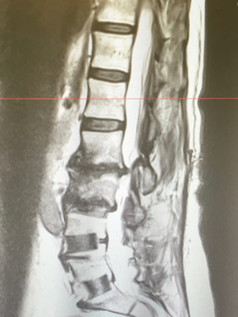 An MRI showing Jan Curtis's damaged spine. Curtis suffered chronic pain for more than a decade. She had surgery for degenerative disc disease in 2017.