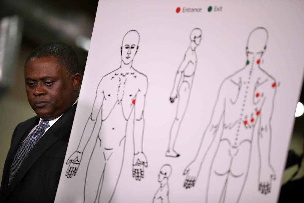 Dr. Bennet Omalu stands by a diagram showing the results of his autopsy of Stephon Clark during a news conference at the Southside Christian Center on March 30, 2018 in Sacramento, California.