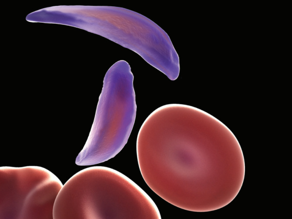 Red blood cells are normally shaped like doughnuts, but sickle cells (purple) are flattened and clump together.