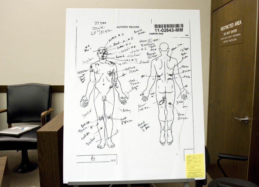 A coroner's drawing indicates where various external injuries were observed on Kelly Thomas' body at the time of autopsy.
