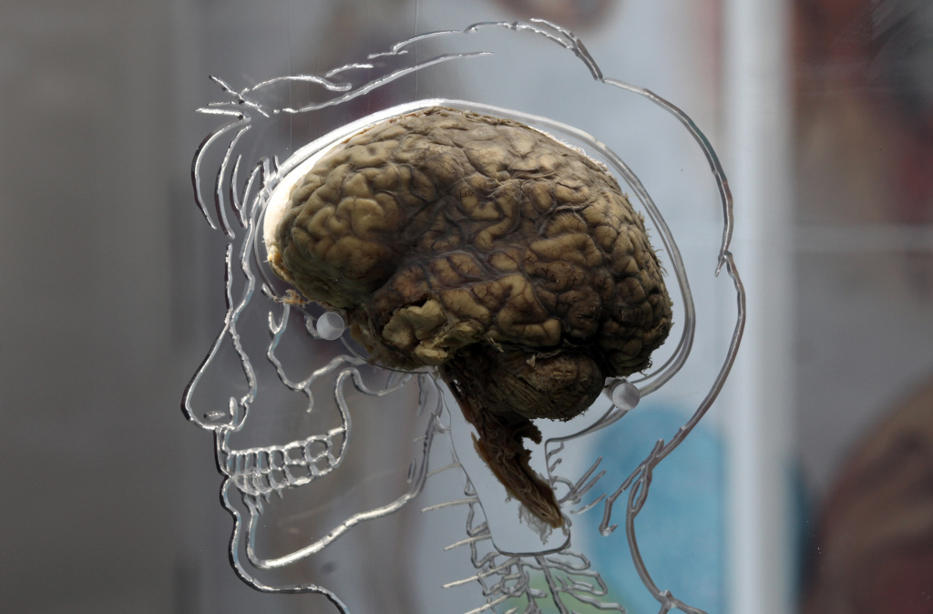 A real human brain being displayed as part of an exhibition in Bristol, England in 2011.