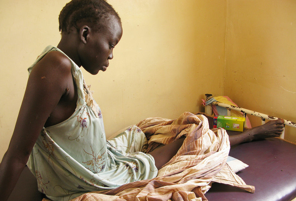 Nyachieng Nguot Teng, 25, lost her left leg and her 7-month-old son suffered a fractured leg when a Sudanese bomb fell on her hut in Lalat, South Sudan, on May 5.