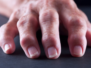 Rheumatoid arthritis is an autoimmune disease that can cause painful inflammation in the fingers and other joints.