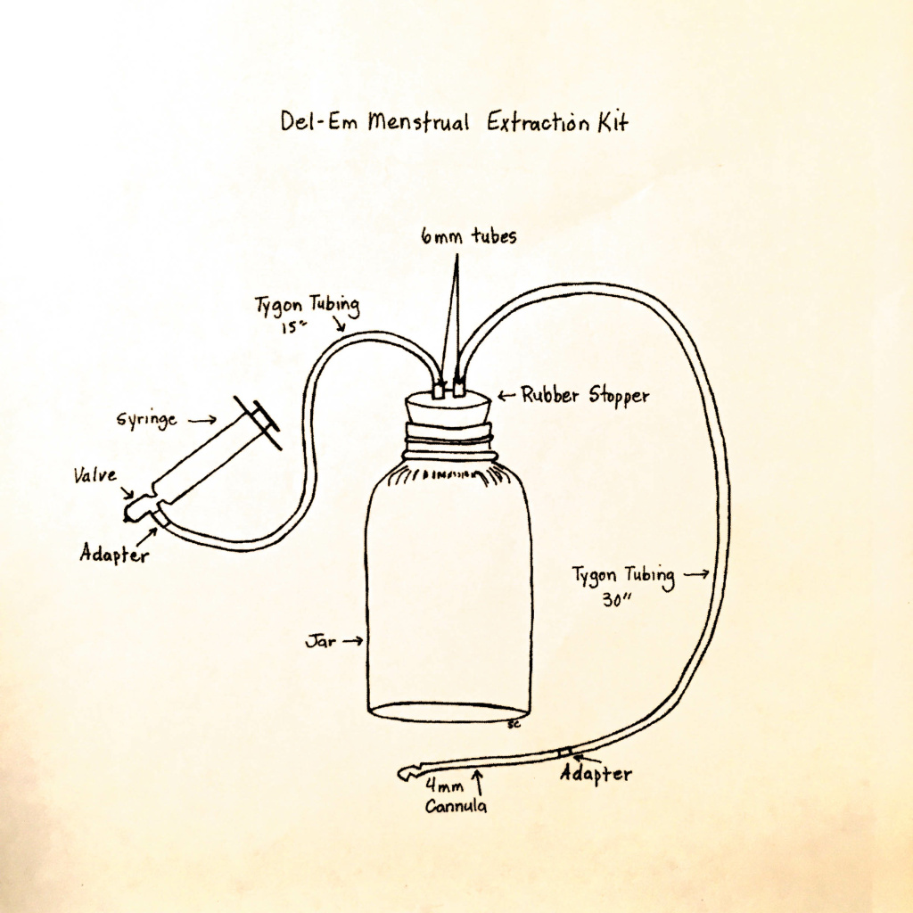 A diagram of a Del-Em kit, developed by Lorraine Rothman