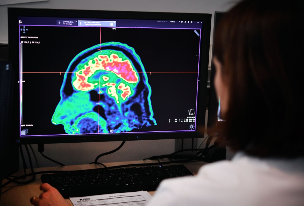 A picture of a human brain taken by a positron emission tomography scanner, also called PET scan, is seen on a screen on January 9, 2019, at the Regional and University Hospital Center of Brest (CRHU - Centre Hospitalier Régional et Universitaire de Brest), western France.