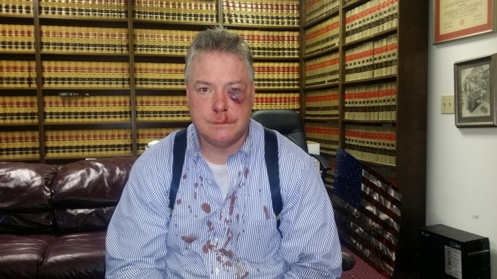 Court-appointed private attorney James Crawford suffered from fractured sinuses after he was allegedly attacked by an Orange County district attorney investigator.