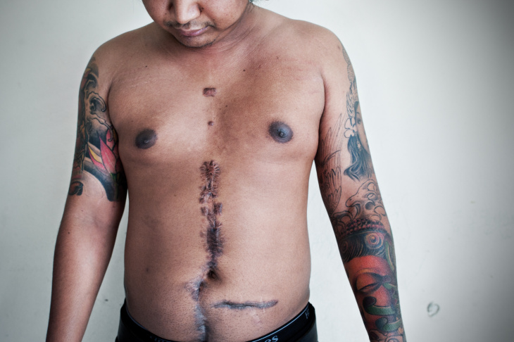 Shorty, 28, shows his Killing Field's tattoo, Philadelphia, PA Apr. 2011.