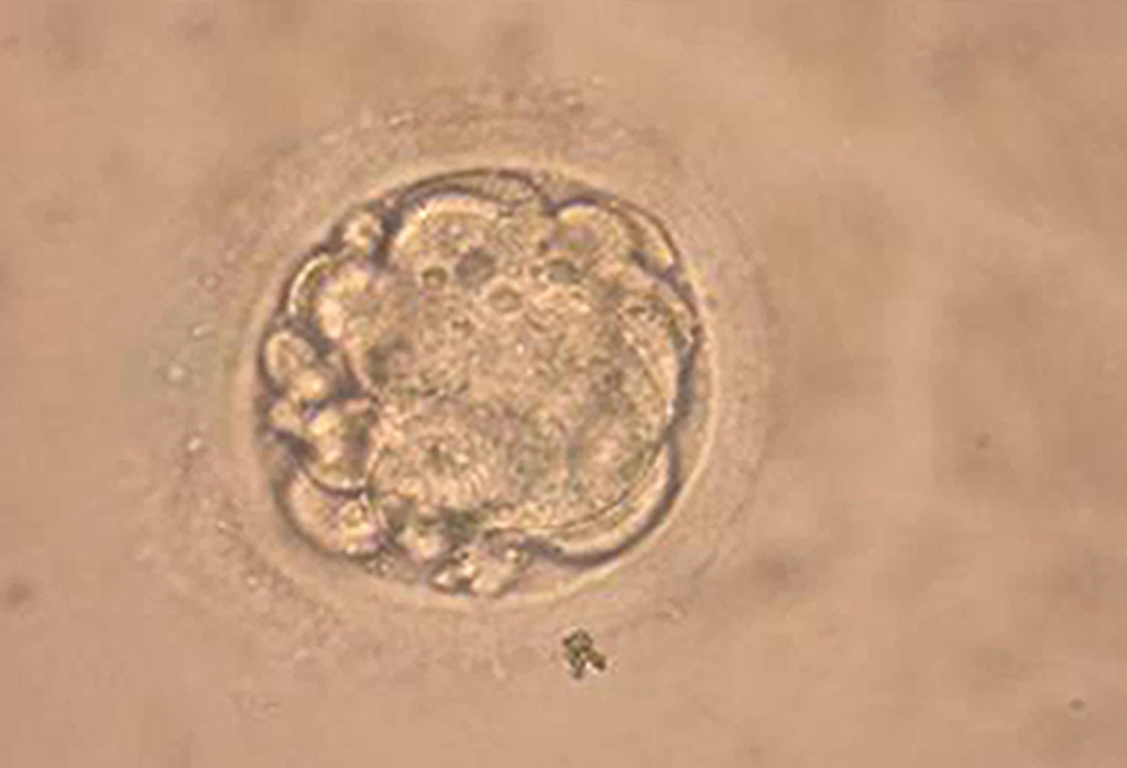 Microscopic photo shows a cloned human embryo used to generate stem cells during an experiment in Seoul. South Korean researchers said they had cloned a human embryo February 12, 2004 and extracted embryonic stem cells from it.