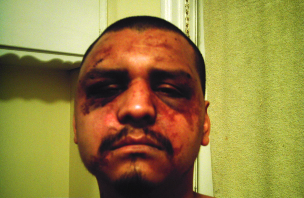 Gabriel Carrillo, 30, says he was beaten up by LA County Sheriff's Deputies while visiting his brother in jail - one of dozens of cases of abuse that prompted the latest reforms.