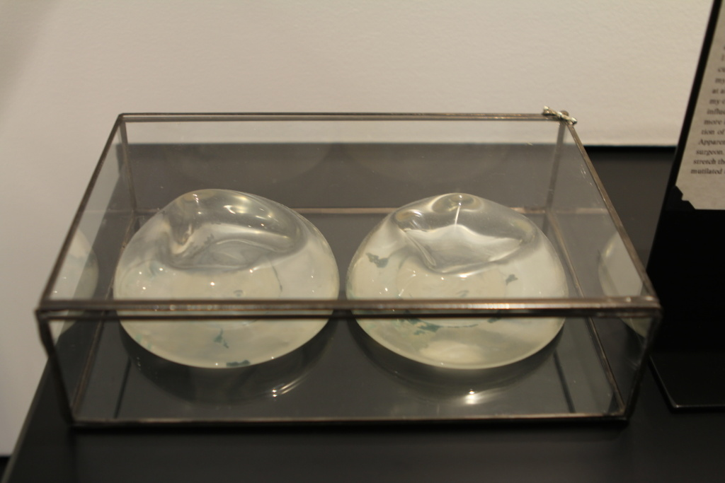 Breast implants that were removed after a breakup sit on display at the Museum of Broken Relationships in Los Angeles, Calif.