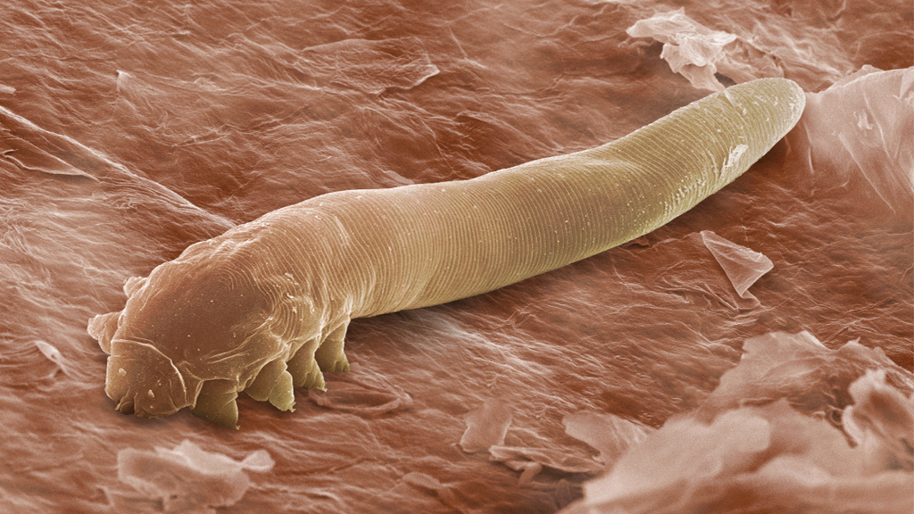 The harmless mite <em>Demodex folliculorum</em>, seen here in an electron microscope image, lives in the follicles of eyelashes.