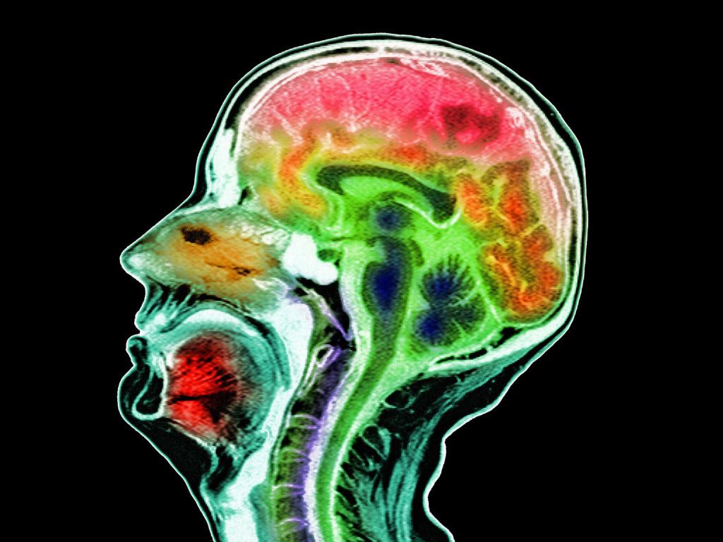 File: An MRI scan.