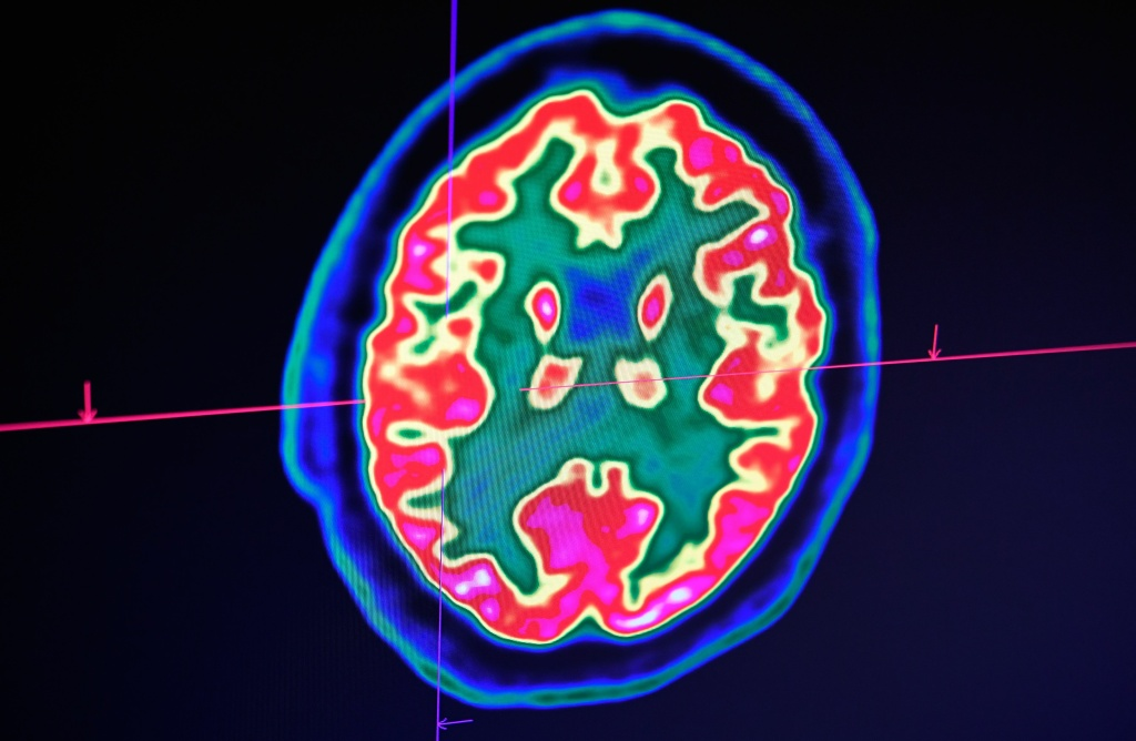 A picture of a human brain taken by a positron emission tomography scanner, also called PET scan, is seen on a screen on January 9, 2019, at the Regional and University Hospital Center of Brest in western France.