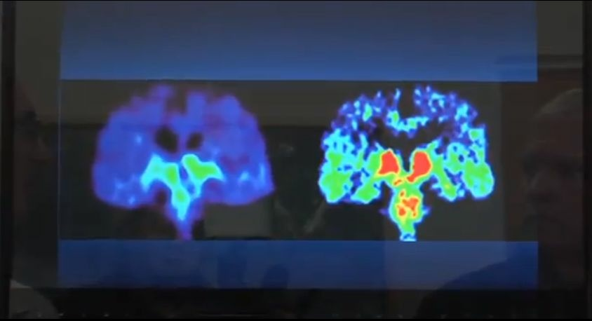Image of a brain scan taken during a UCLA study on brain injuries in living former NFL players.