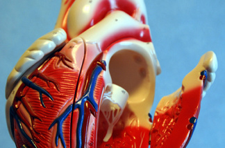 More than one million Americans a year get cardiac catheterizations.