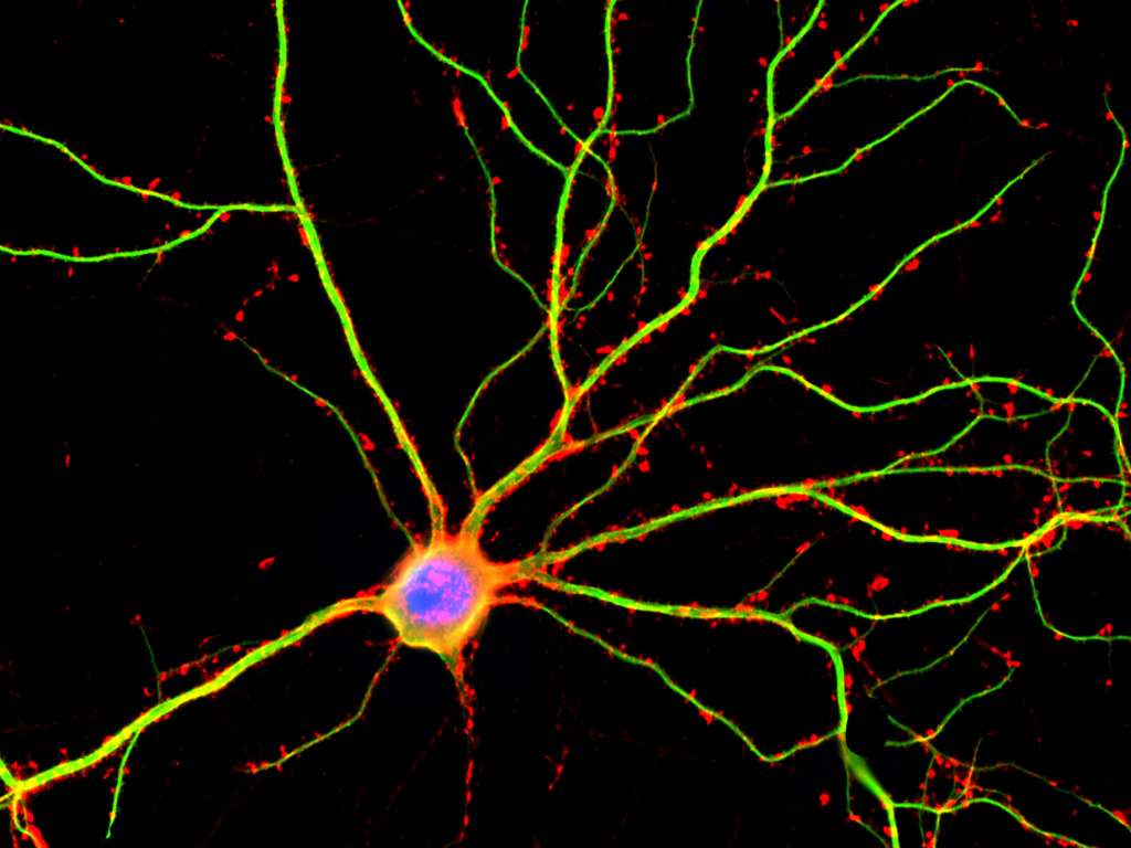 Hippocampal neuron in culture. Dendrites are green, dendritic spines are red and DNA in cells nucleus is blue.
