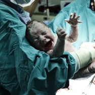 New study finds autism is not linked to c-sections
