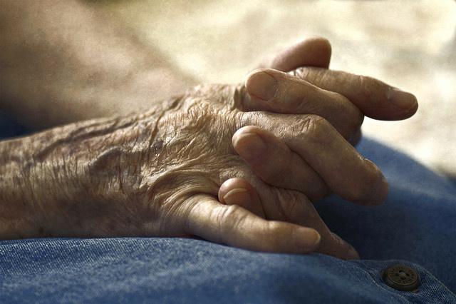 arthritis, hands