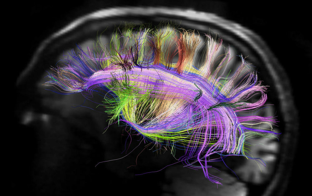 This image shows the grid structure of the major pathways of the brain. It was created using a scanner that's part of the Human Connectome Project, a five-year effort which is studying and mapping the human brain.