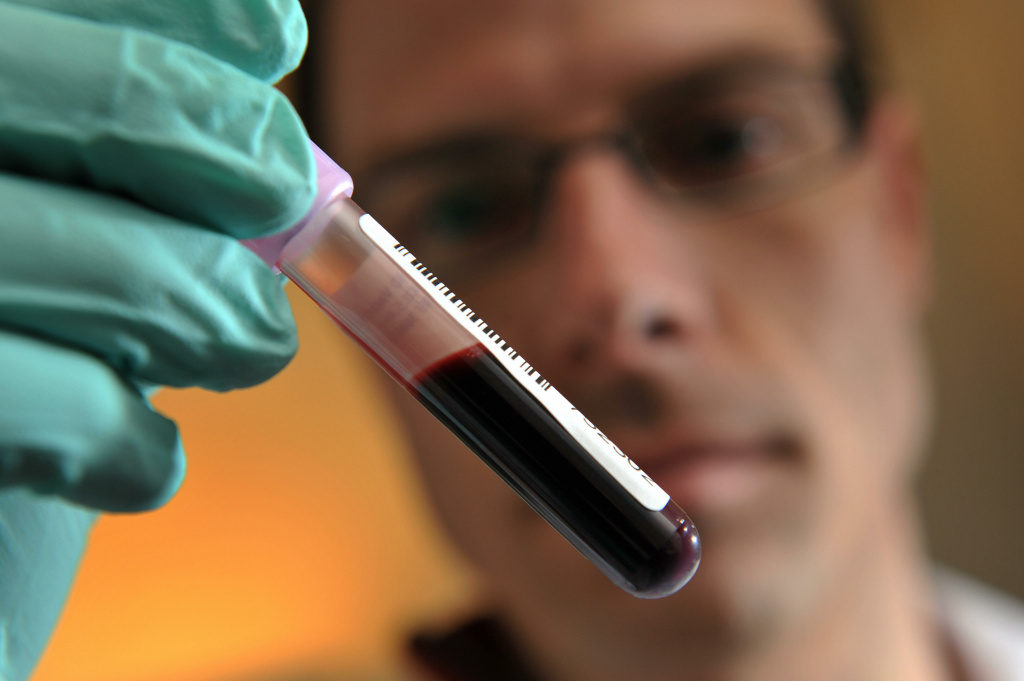 Neil Robinson shows a blood sample in Epalinges near Lausanne, Switzerland on February 25, 2009.
