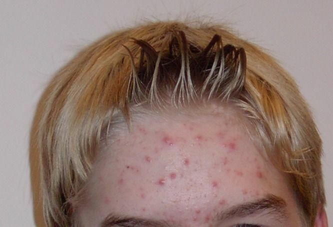 Acne on the forehead of a 14-year-old boy.
